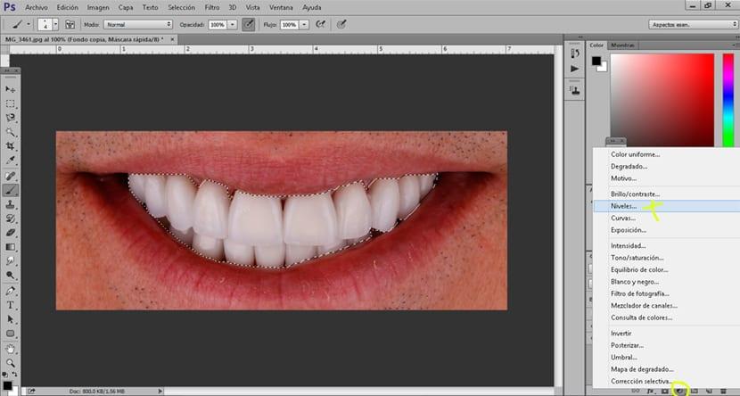 Una capa de ajuste de niveles puede ser usada para aclarar los dientes de una imagen