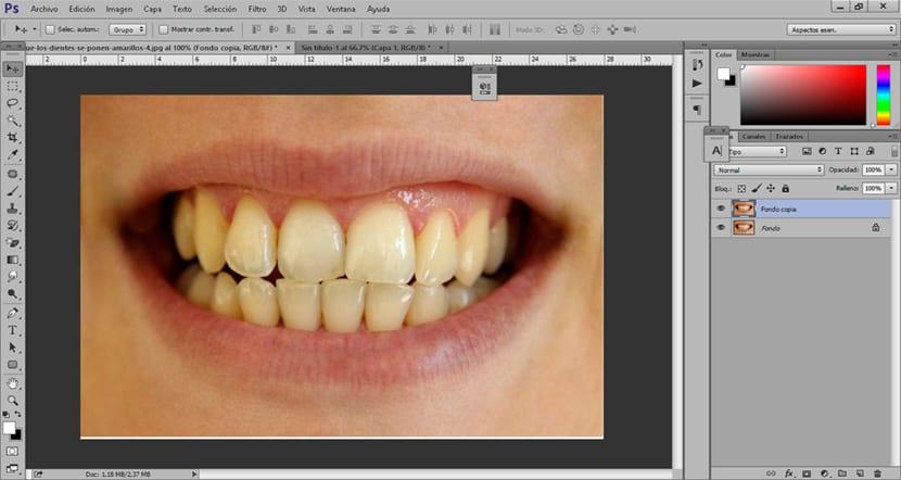 Usamos una fotografía donde se pueden ver unos dientes con poco brillo
