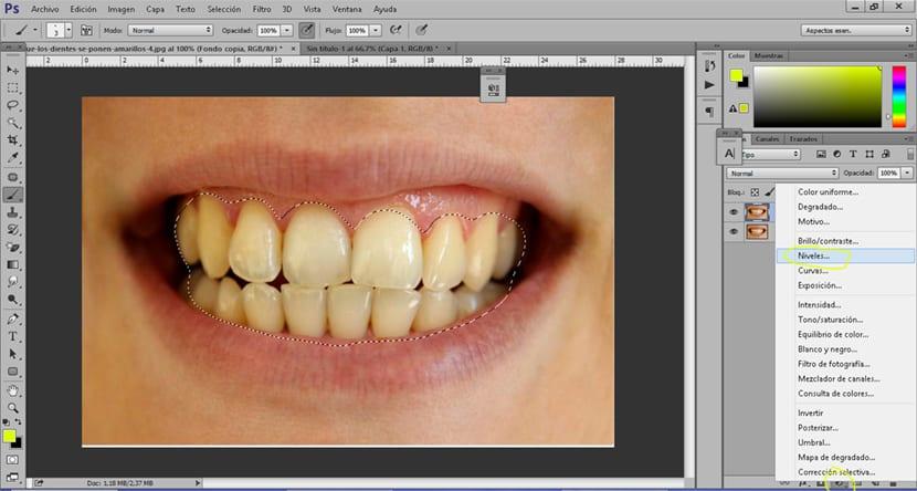 Creamos una capa de ajuste niveles para corregir el brillo de los dientes
