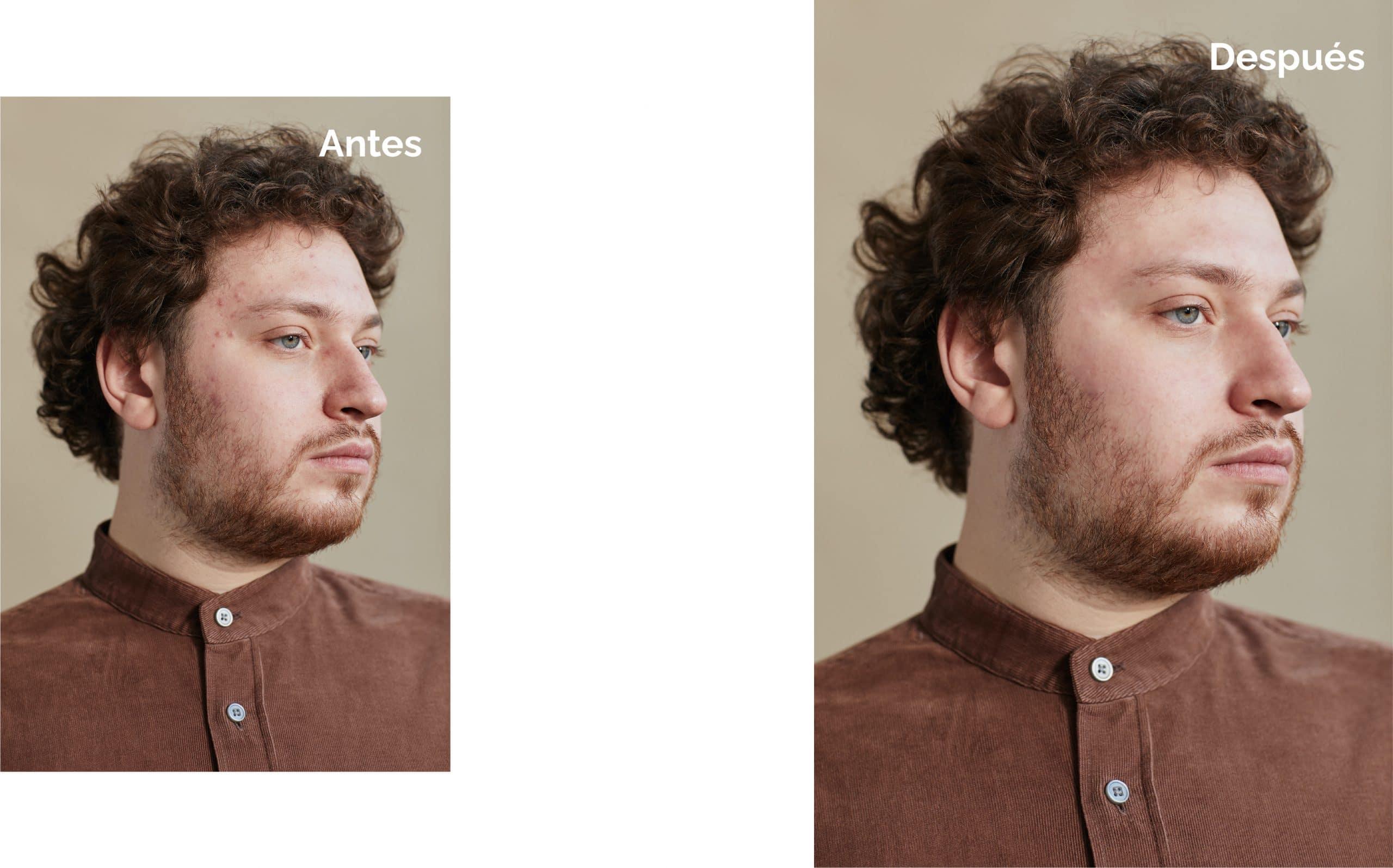 Resultado final cómo suavizar la piel en Photoshop
